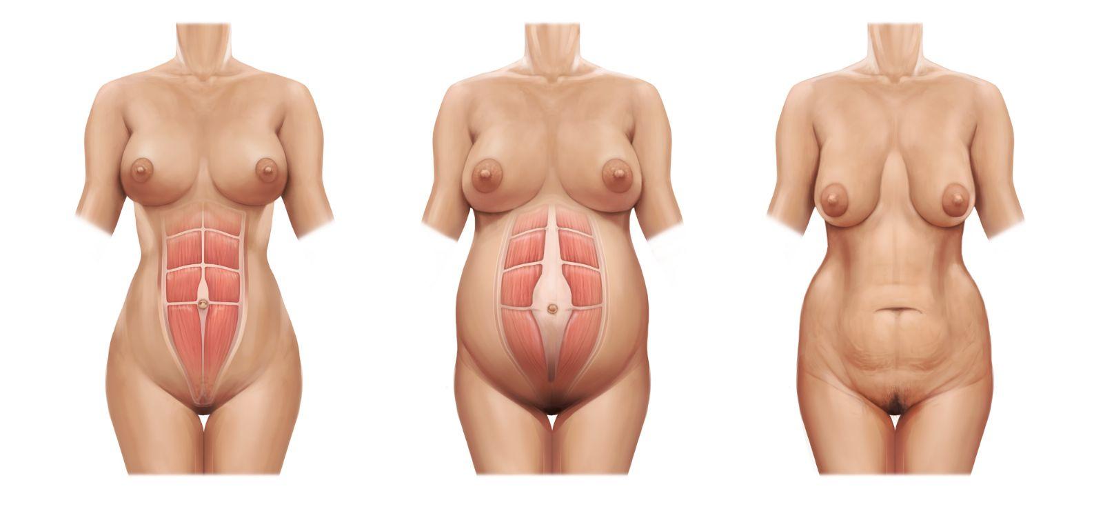 Resultado de imagen de barriga postparto dibujo